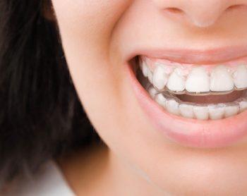 Diferencias entre alineadores prescritos por un ortodoncista y alineadores directos al consumidor